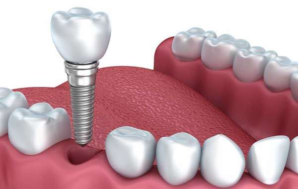 Dental Implants Market Industry Growth, Trends, Top Organizations and Forecast 2026